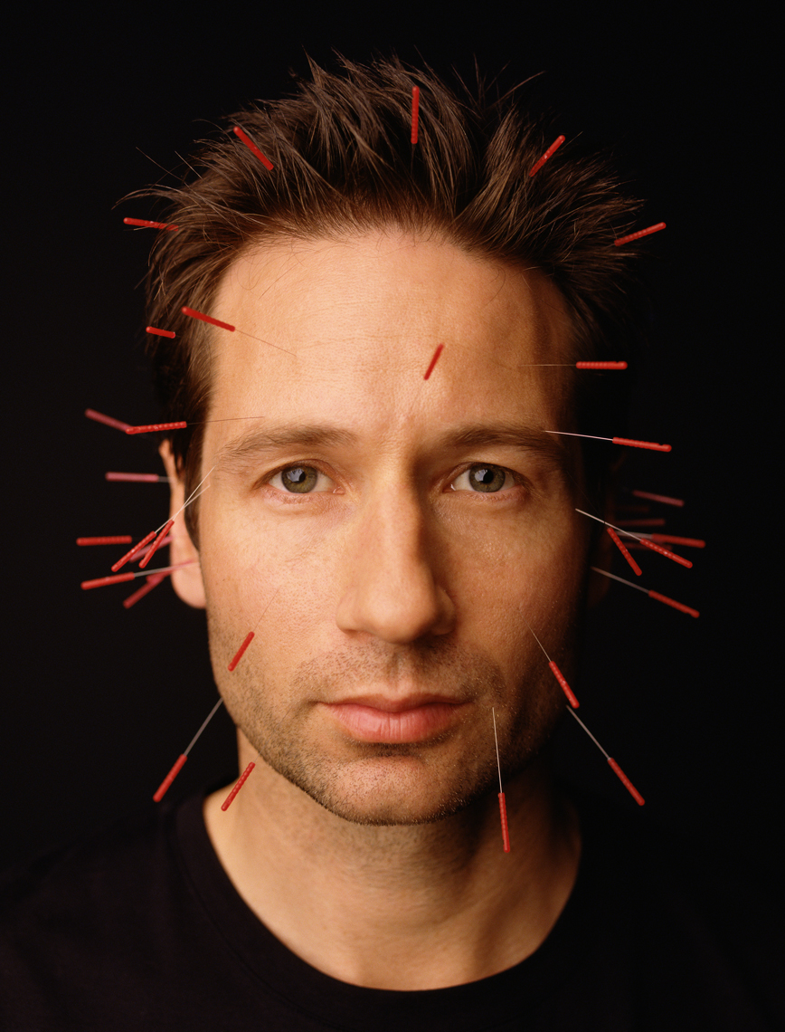 wDavid_Duchovny_Acupuncture_Needles
